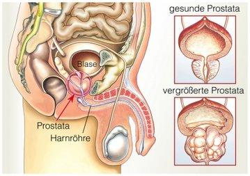 gegen prostatabeschwerden